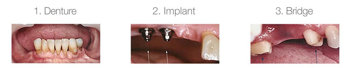 1. Extract, 2. Implant, 3. Bridge