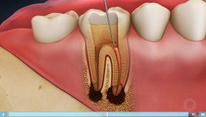 Video Animation of Root Canal